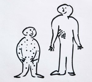 Chickenpox can come back as shingles in adults